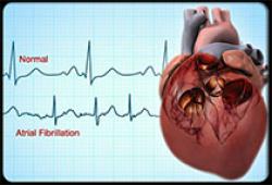 Stroke:视网膜中央动脉阻塞后房颤的检出率