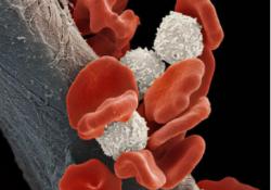 "Leukemia:艾曲波帕eltrombopag在骨髓增生<font color=""red"">异常</font><font color=""red"">综合</font><font color=""red"">征</font><font color=""red"">的</font>PDX模型中<font color=""red"">的</font>临床前评估"