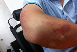 """Burns:""""人造皮肤""""3期临床结果发布,让创伤愈合不留疤痕"""