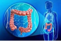 Br J Cancer:抗EGFR疗法治疗结直肠癌的亚型特异性疗效取决于化疗药物选择