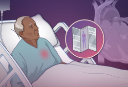 NEJM:因心衰住院的老年患者身体康复评估