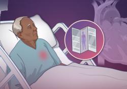 """NEJM:因<font color=""""red"""">心衰</font>住院的老年患者身体康复评估"""