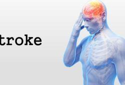 Stroke:脑卒中后是瘫痪还是恢复独立行走?来看看这些因素的预测作用!