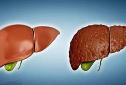 AJG:与乙型肝炎相比非酒精性脂肪性肝炎导致的肝硬化预后较差