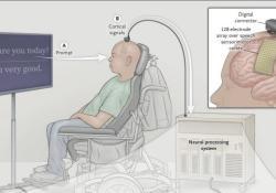NEJM:直接解码皮层活动以恢复中风瘫痪患者的语言功能
