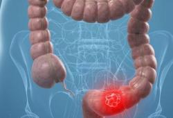 JGastroenterologyH:内脏肥胖的增加与结直肠腺瘤的风险增加有关