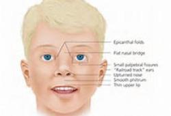 Int J Pediatr Otorhinolaryngol:先天性腭裂儿童的传导性听力损失与腭裂语言特征之间的关系