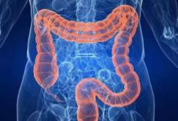 Br J Cancer:含糖饮料的摄入量影响结直肠癌患者的存活率
