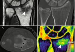 "Radiology:双能<font color=""red"">CT</font>在腕关节损伤的中附加价值"