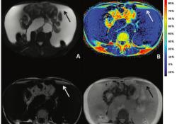 "Radiology:<font color=""red"">MRI</font>Dixon脂肪定量技术在乳糜液中的应用"