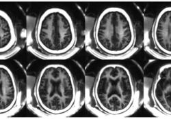"Radiology:STAIR-UTE<font color=""red"">MRI</font>序列在髓鞘成像中的应用"