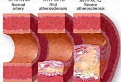 Cardiovasc Diabetol:甘油三酯-葡萄糖指数越高,动脉硬化风险越高!
