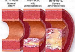 "Cardiovasc Diabetol:甘油三酯-葡萄糖指数越高,<font color=""red"">动脉</font>硬化风险越高!"