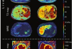 Radiology:从影像学的角度解读肝硬化性心肌病