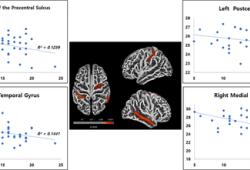 HUMAN BRAIN MAPPING:右额上回萎缩可能与严重易激惹有关