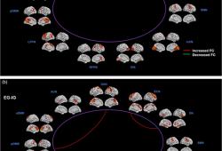 前默认网络和听觉网络间连接可预测特发性耳鸣患者预后