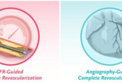 NEJM:血流储备分数vs血管造影指导PCI对多支血管疾病ST段抬高型心肌梗死患者预后的影响