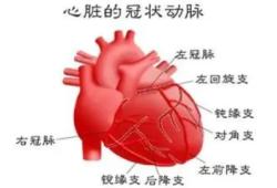 Circulation:三支血管或左主干冠脉病变患者血运重建后的10年全因死亡率