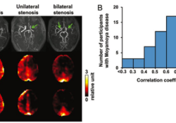 "Radiology:BOLD功能磁共振成像在<font color=""red"">烟雾</font>病中的应用"