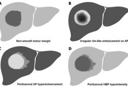 Radiology:在预测HCC微血管浸润方面,MR并非想象中的可靠!