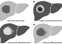 "Radiology:在预测<font color=""red"">HCC</font>微血管浸润方面,MR并非想象中的可靠!"
