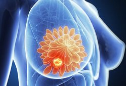Clin Cancer Res:尼拉帕利在携带BRCA1/2胚系突变的晚期乳腺癌中的治疗活性