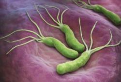 Diabetes Care:长期服用二甲双胍对肠道微生物组成和循环短链脂肪酸的影响