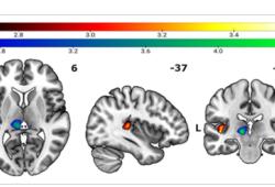 HUMAN BRAIN MAPPING:你的痛点有多高,岛叶皮质来决定