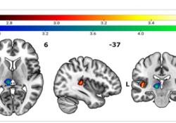 "HUMAN BRAIN MAPPING:你<font color=""red"">的</font>痛点有多高,岛叶皮质来决定"