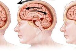 JAMA子刊:短期内的严重损伤不代表中度至重度颅脑创伤预后不良