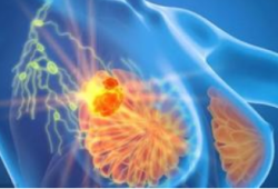 Eur J Cancer:拉帕替尼和曲妥珠单抗同步治疗HER2+乳腺癌可的预后