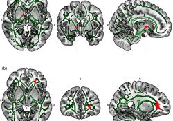 "HUMAN BRAIN MAPPING:重度抑郁症患者<font color=""red"">神经</font>质、快感缺乏等症状与特定白质连接有关"