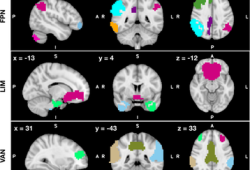 HUMAN BRAIN MAPPING:一种探索重度抑郁症患者的脑连接变化的新方法