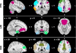 "HUMAN BRAIN MAPPING:一种探索重度抑郁症患者的脑连接变化的<font color=""red"">新方</font><font color=""red"">法</font>"