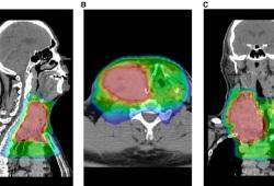 Cancer:调强放疗联合阿霉素治疗晚期甲状腺癌的效果优于单纯放疗