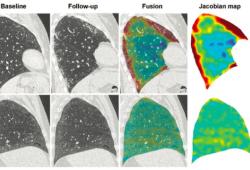 Radiology:SSc相关性ILD的评价,我们又近了一步