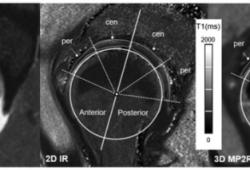 Radiology:3D MP2RAGE MRI序列在关节软骨中的价值