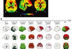 Radiology:从ADC值走进大脑发育的进程!