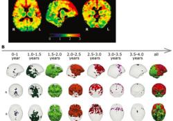"""Radiology:从<font color=""""red"""">ADC</font>值走进大脑发育的进程!"""