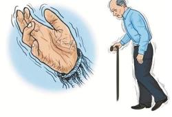 Neural Regen Res:炎性肠病患者患帕金森病风险高