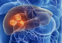 Cell Death Dis:BH3-only蛋白表达水平决定肝细胞癌患者对基于索拉非尼的药物组合治疗的反应