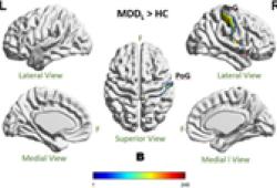 HUMAN BRAIN MAPPING: 疾病的持續時間影響MDD網絡模式