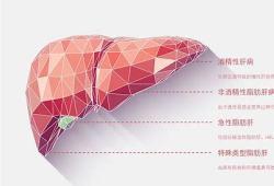 JClincalGastroenterology:肾功能衰竭与非酒精性脂肪性肝炎患者的死亡率增加有关