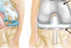 "PLOS MED:肥胖会导致膝关节置换术患者""二次手术"",但却降低死亡率!"