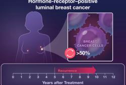 NEJM:绝经后乳腺癌患者采用芳香化酶抑制剂辅助治疗时间多长为宜?