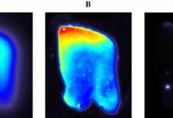 Eur J Nucl Med Mol Imaging:一种新型高灵敏度阿尔茨海默病β-淀粉样蛋白PET示踪剂:[18F]DRKXH1
