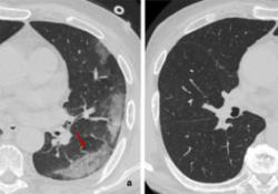 "Radiology:胸部CT<font color=""red"">研究</font>发现<font color=""red"">COVID</font><font color=""red"">-19</font>肺炎纤维化改变<font color=""red"">的</font>预测因子"