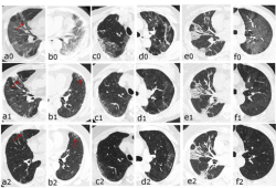 Radiology:CT随访发现重度COVID-19幸存者肺间质异常持续存在