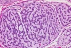 Clin Cancer Res:阿西替尼可显著提高复发/转移性腺样囊性癌的无进展生存率