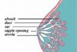 JNCCN:女性乳腺癌患者既往接受钼靶筛查对预后的影响